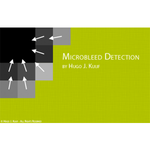 The Utrecht Microbleed Detection App